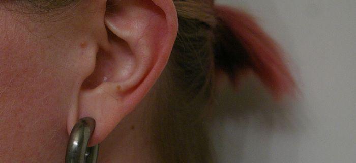 Izraubovane uši
